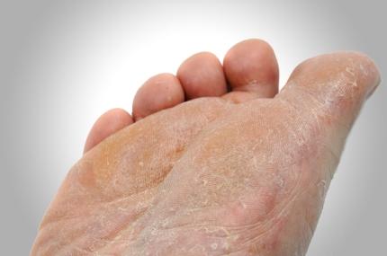 Itchy Rash on the Arch or Heel of the Foot